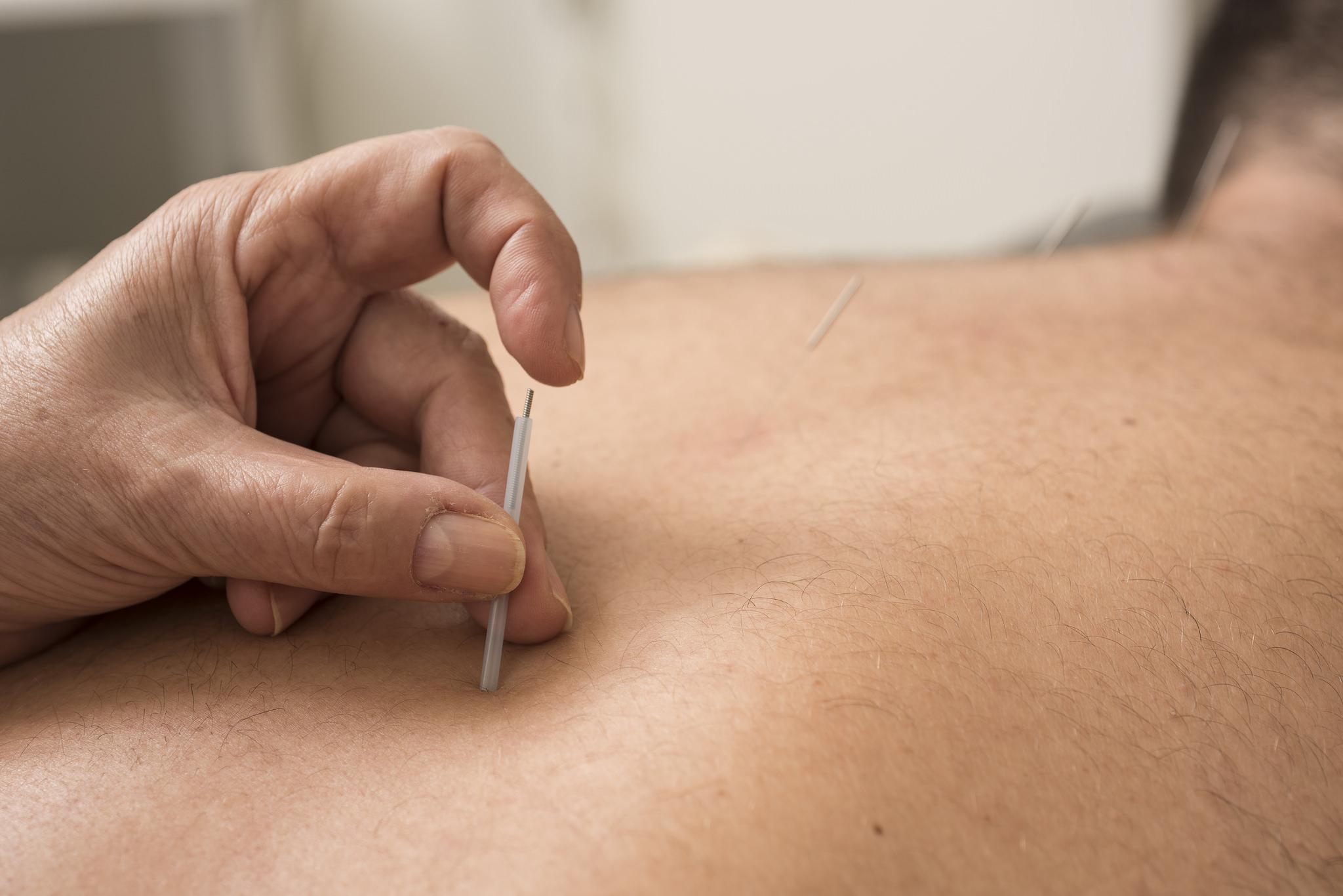 Técnica milenar da acupuntura traz benefícios para corpo e mente